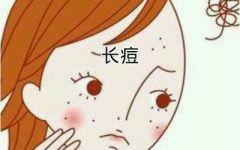 长痘痘可爱图片卡通图片